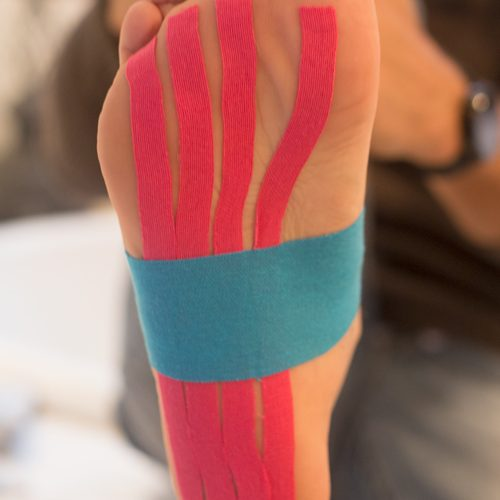 Step 4 - Kinesio Pre-Cut Dynamic Foot Support Application
